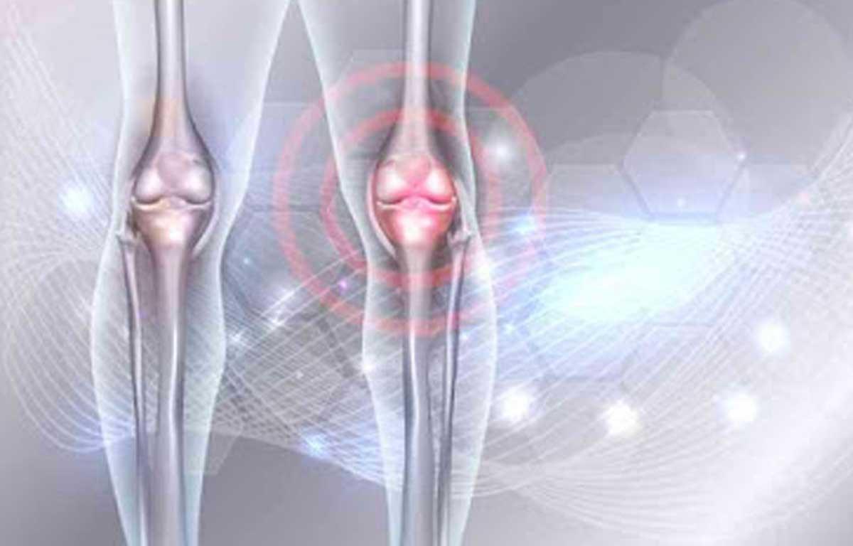 укрепление суставов