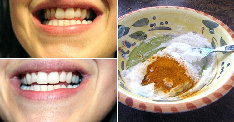 Как отбелить зубы куркумой пошаговое руководство